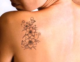 Promoção: remoção de tatuagem em Curitiba