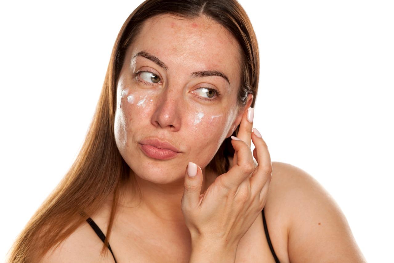 Melasma: tudo que você precisa saber sobre as manchas na pele