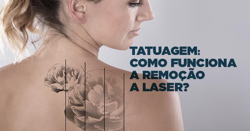 Remoção de tatuagem: como funciona?