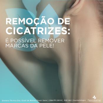 Remoção de cicatrizes: é possível remover marcas da pele